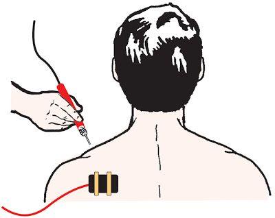 La ionothérapie ou comment traiter électroniquement les affections de la peau ~ Schema Electronique Net