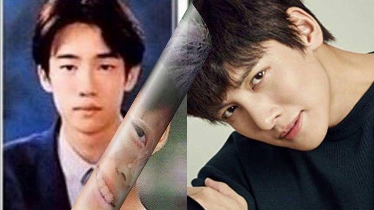 Artistas Coreanos antes y después