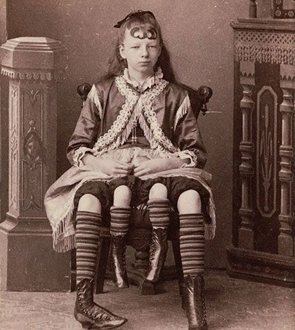 Inside the freak show: history's most famous and fascinating sideshow performers