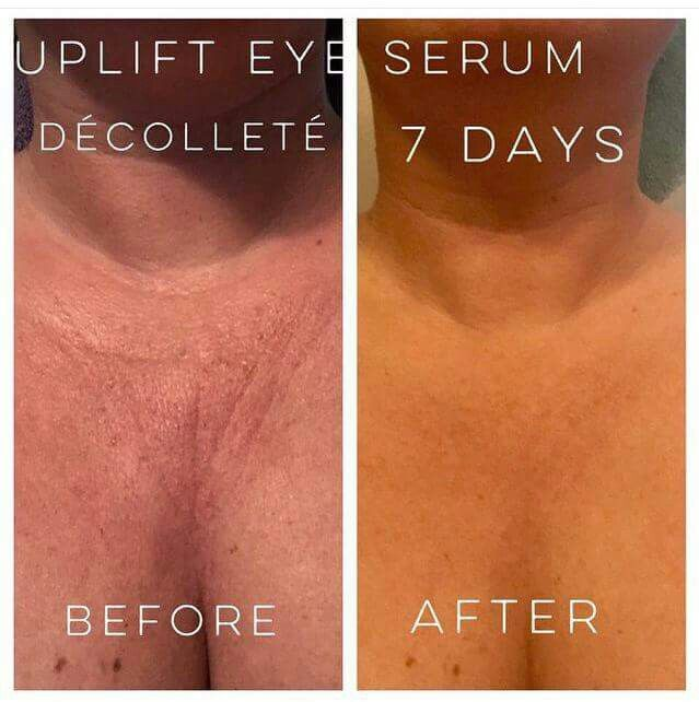 Uplift Eye Serum can give you results like this !!! Not only for eyes !!! Check it out here www.youniquestacy.com