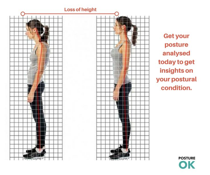 """Would you like to get Posture Analysis for your whole family? We offer special prices for Family Package to get <a href=""""http://postureok.com/our-services/"""">good back posture</a>"""