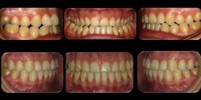 Antes y después con el Sistema Damon.