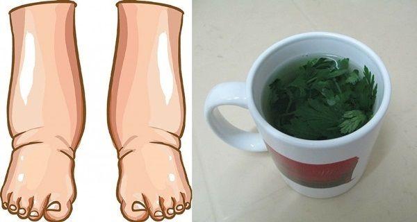 Je mnoho příčin, které způsobují oteklé nohy, například hormonální poruchy, horka, selhávání ledvin, těhotenství, problémy s cévami a pod. Alternativní medicína zná mnoho způsobů jakými zabojovat s oteklými nohama. Nejúčinnějším z nich je petržel, protože dokáže eliminovat z těla přebytečnou vodu
