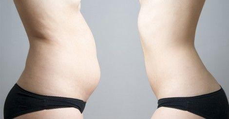 Cómo deshinchar el abdomen