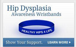 More Hip Dysplasia Information