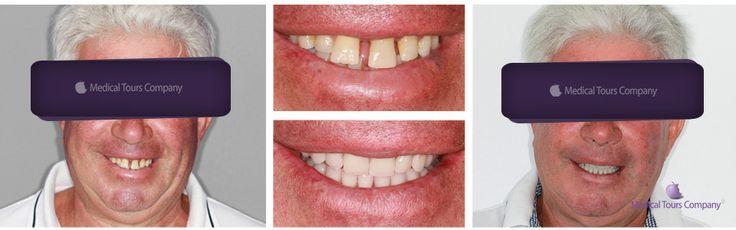 #Teeth in One Day #Dental implants #Dental Crowns #dentist #dental treatment