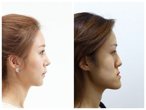 Creepy Twins From Korea Before And After Plastic Surgery Before