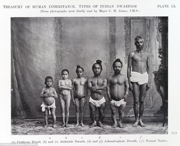 Photographs of 'Indian Dwarfism' from the Eugenics Society in 1912. Dwarfism refers to people who are4 feet 10 inches or under as a result of a genetic or medical condition. Before the atrocities of Nazi Germany, eugenics - the system of measuring human traits, seeking out the desirable ones and cutting out the undesirable ones - was once practised the world over