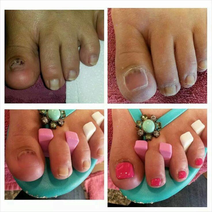 how to apply acrylic on toenails