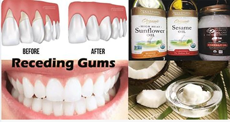 The Gum Disease is a Silent Killer! Here Are 8 Home Remedies to Heal It!