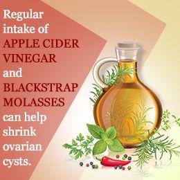 Apple cider vinegar for ovarian cysts