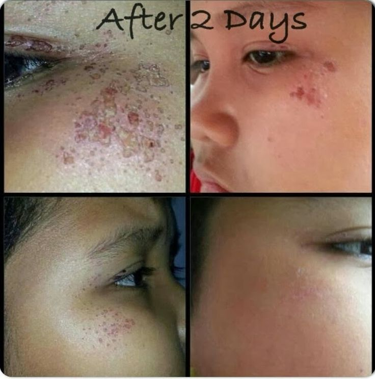 skincerity before and after photos - Google Search