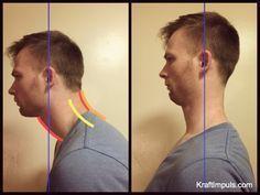Muskuläre Dysbalance – 23 Übungen gegen Hohlkreuz, Rundrücken und Geierhals