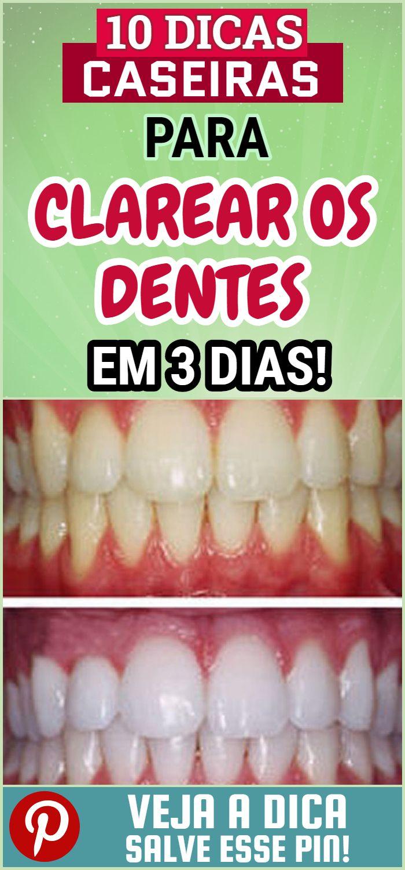 10 Dicas Para Clarear Os Dentes Em 3 Dias Dicas De Beleza Pele