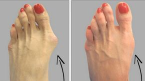 Among the most common and painful foot ailments are the bunions.    When your big toe will be pointing toward your second toe, while causing a bump or prominence to be developed on the inside edge of
