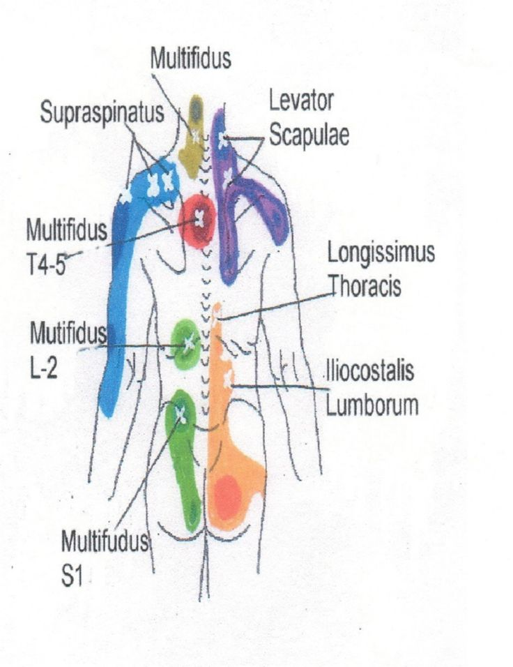 trigger point massage therapy pdf