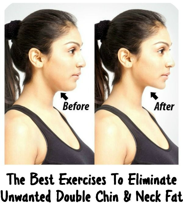 The Best Exercises To Eliminate Unwanted Double Chin & Neck Fat