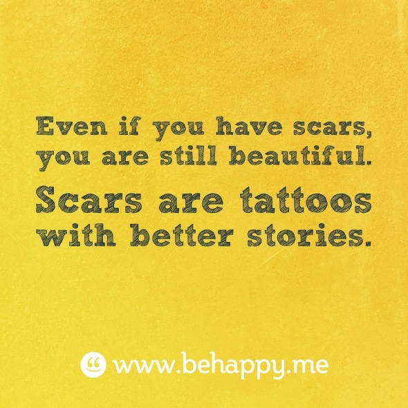 Tattoo Quotes About Scars: 389 Best SCOLIOSIS Curves United... Images On Pinterest