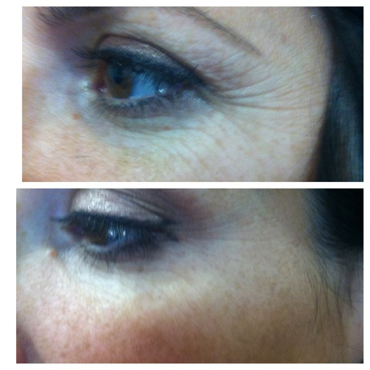 7 nights with Nerium AD!  She can't believe it. www.kellimar.nerium.com