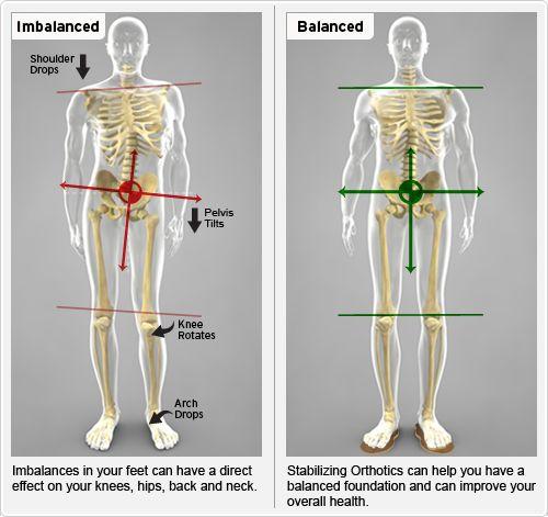 Imbalanced Posture, Balanced Posture-call for a complimentary foot scan to check for imbalances.