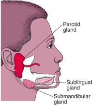 What is an infected parotid gland?