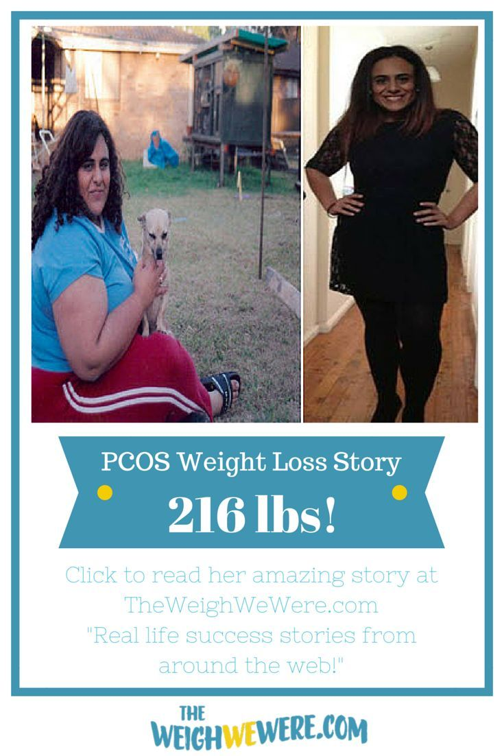 She lost 216 pounds with PCOS. Read her weight loss transformation story...
