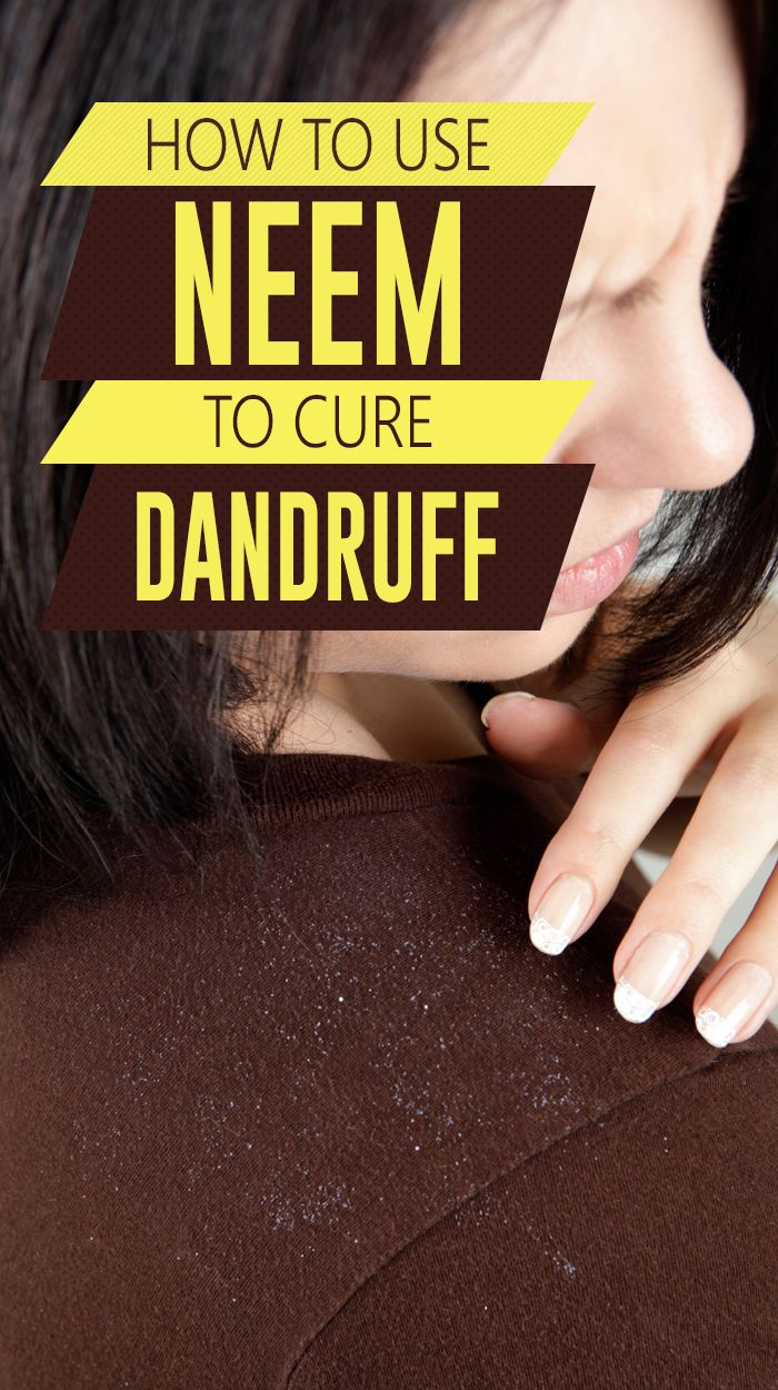 How To Use Neem To Cure Dandruff: Neem leaves are loaded with anti-inflammatory, antibacterial, and antifungal properties that work together to thwart the growth of dandruff. Here are a few ways you can use neem to remove dandruff and to prevent it from recurring. Read on and you can also pose your queries to get a .