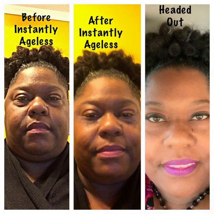 #instantlyageless #before #after #pic under eye circles #gone