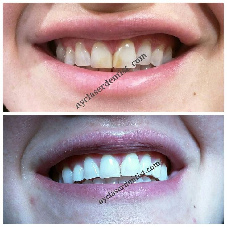 Enamel microabrasion to correct deep staining... #onevisit #painless #dentistry #whitening #smile #makeover #cosmetic #dentist #laser #plasticsurgery #cosmeticsurgery #bleaching #teeth #mua #happy #healthy #model #actress #nyc #ny #celebritydentist #edc #edm #lips #cerec #veneers #dds #doctor #insomniac #nyclaserdentist by nyclaserdentist Our Dental Veneers Page: http://www.lagunavistadental.com/services/cosmetic-dentistry/veneers/ Other Cosmetic Dentistry services we offer…