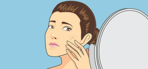 7 Simple Steps To Use Castor Oil To Treat Acne