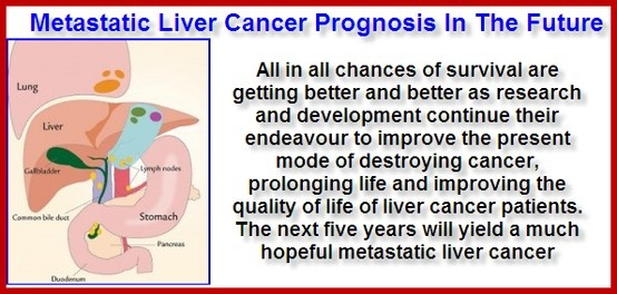 The Liver Cancer Prognosis price is instead low, because the condition can go undiscovered for time prior to indicators of the cancer surface. The mean time of prognosis is at 60 years and majority of clients are guys.