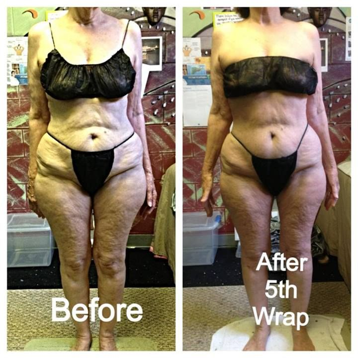 BEFORE & AFTER: Universal Contour Body Wrap