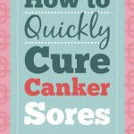 How to Quickly Cure Canker Sores  DIY & Crafts - Raining Hot Coupons
