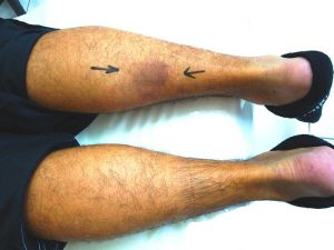 Ruptured Gastrocnemius. Copyright  HarryGouvas