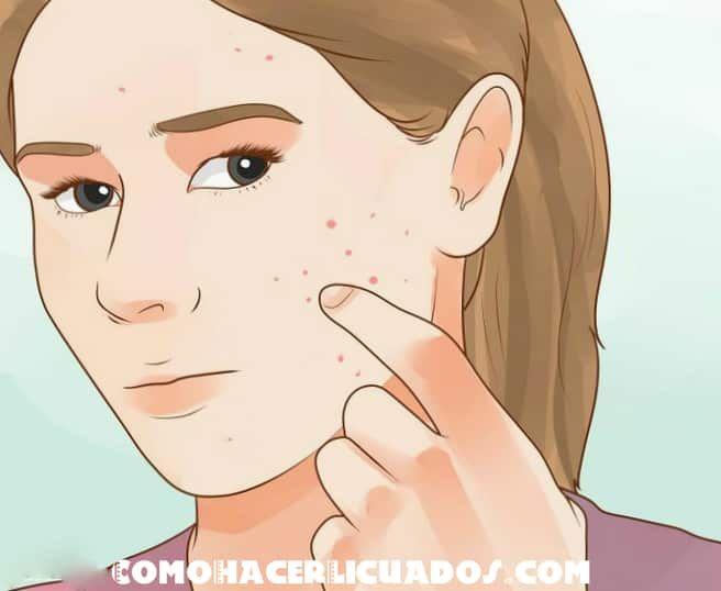 como quitar las espinillas de la cara