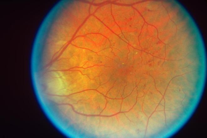12 niños mejoran su visión tras una terapia con células madre | Salud | EL MUNDO