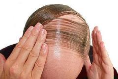 2. 모자나 가발을 쓰면 탈모가 더욱 진행되나요?      모자나 가발을 쓰고 다니면 두피에 통풍이 잘 안되어 머리가 빠진다고 생각하시는 분들이 많습니다.  대머리는 피부 바깥쪽이 아니라 피부의 내부에 있는 모낭에서 일어나는 변화입니다.  따라서 모자를 쓰는 것과는 관계가 없습니다.