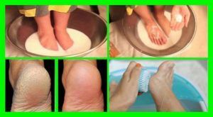 Even The Doctors Are Amazed: Soak Your Feet in One of These Mixtures And Get Rid Of Toe Nail Fungus – Naturally!