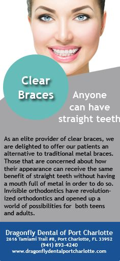 Those that are concerned about how metal braces may impact their appearance can receive the same benefit of straight teeth without having a mouth full of metal.