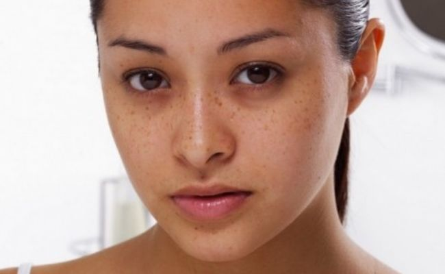 Treat Your Rosacea, Acne and Dark Circles with this amazing Turmeric Face Mask