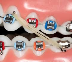 The Importance of Elastics During Orthodontic Treatment~At Dunegan Orthodontics of Gainesville, Virginia, we stress the importance of wearing elastics during orthodontic treatment. During the course of orthodontic treatment, a patient with braces may have to wear elastic rubber bands to help correct their malocclusion. For some patients, elastics are worn toward the end of braces treatment to put the final 'squeeze' on their almost perfect smile. Elastics are often an essential part of…
