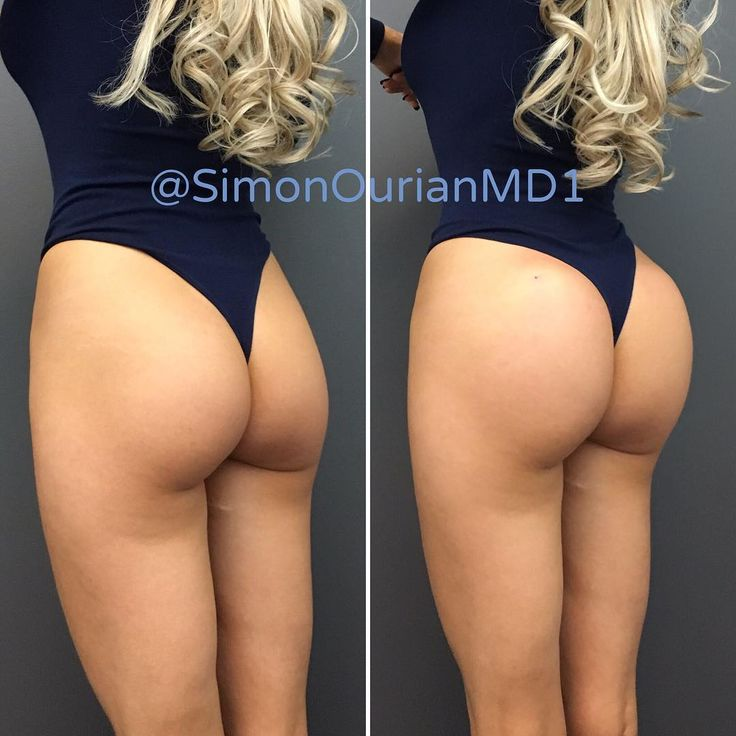 """BBL II.  No scalpel butt lift.  No general anesthesia. No implants.  No scalpel.  The new advanced techniques for """"Brazilian Butt Lift"""". Using ones own fat or permanent fillers.  Learn about all your options.  No-scalpel """"Brazilian Butt Lift"""" video is next.   Extremely important Warning :  Silicone injection and other forms of injections except fat transfer and FDA approved dermal fillers are not legal and are extremely dangerous.  If someone is offering you silicone injection for your butt…"""
