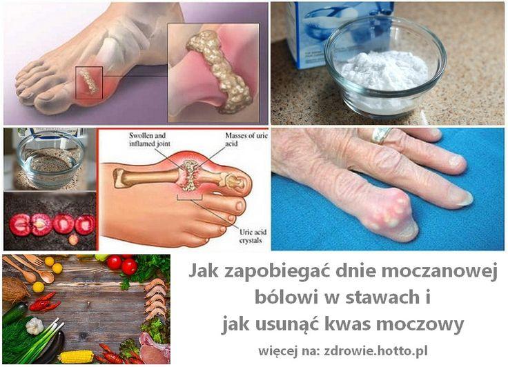 zdrowie-hotto-pl-jak-zapobiegac-dnie-moczanowej-w-stawach-jak-usunac-kwas-moczowy