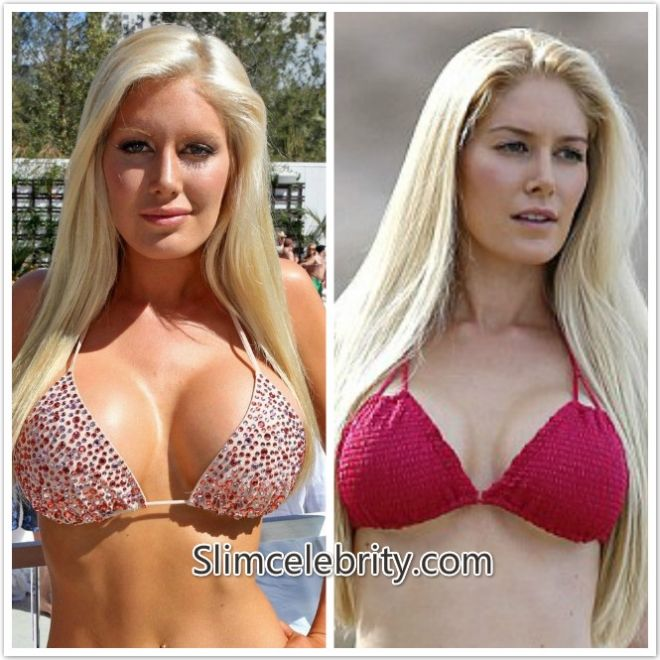 Celebrities With Plastic Surgery Heidi Montag Courteney: Heidi Montag Breast Reduction