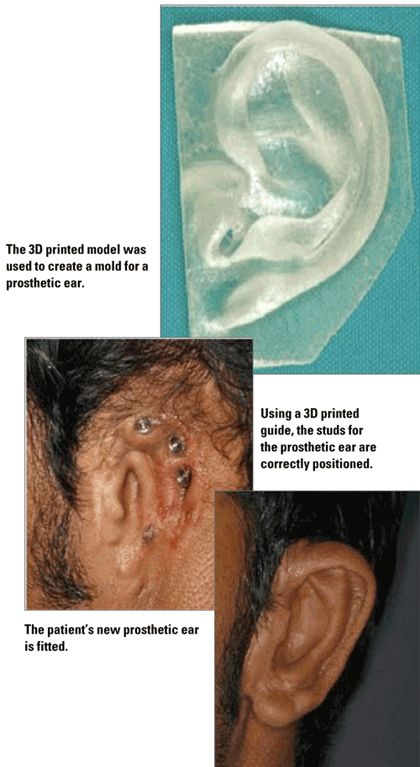 3D printed ear , it maybe here today 3 d printing body parts like bums and boobs instead of surgery