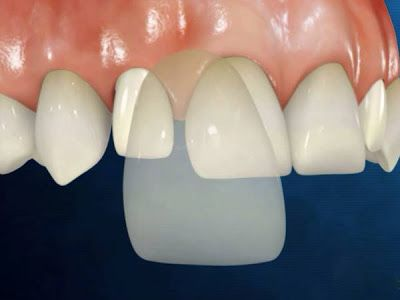 Mặt dán răng sứ Veneer được coi là phục hình thẩm mỹ vừa hiệu quả, ăn nhai tốt lại không làm tổn thương răng thật nên nhận được rất nhiều quan tâm của khách hàng. Vậy mặt dán răng sứ veneer giá bao...