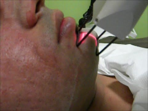 Acne Scar Removal | Best Laser Treatment For Acne Scars in Mumbai, India - Dr. Rinky Kapoor -  CLICK HERE for the Acne No More program #acne #acnetreatment #acnetips #acnecare Can acne scars be removed? How to remove acne scars? What is the best treatment http://beautifulclearskin.net/category/no-more-acne/
