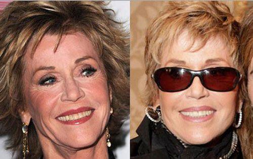 Jane Fonda Plastic Surgery Before After Rumor
