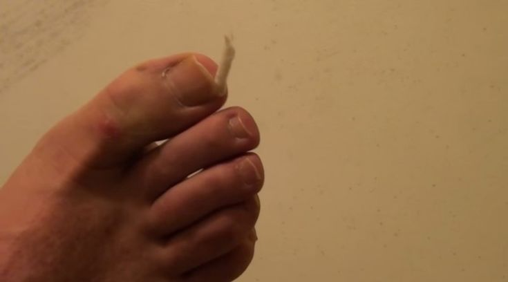 It's this easy to care for ingrown toenails at home. No need for an operation!