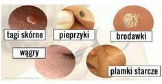 Nie ma wątpliwości, że do najczęściej pojawiających się problemów skórnych atakujących zarówno kobiety, jak i mężczyzn, należą pieprzyki, tagi skórne, zatkane pory i plamki starcze. Tego rodzaju dolegliwości wynikają zwykle z zaburzeń gospodarki hormonalnej organizmu, niezdrowego